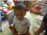 Lời cầu cứu của một bé người Chăm mắc bệnh u tuyến thượng thận quáiác